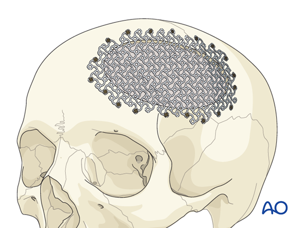 Postablative reconstruction of cranial defect: Radial forearm free flap