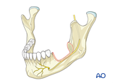 mandible marginal full thickness defect