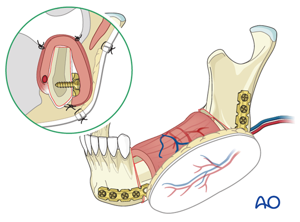 lateral mandible mucosa and skin