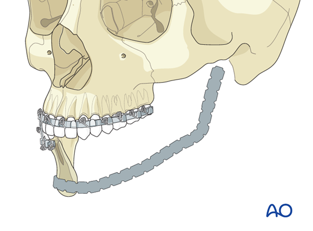 plate and scapular osteocutaneous free flap