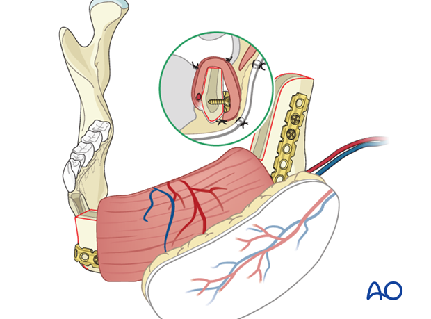 symphysis lateral condyle mucosa and skin