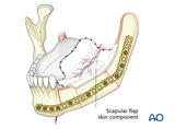 lateral mandible condyle mucosa and tongue more than1 3