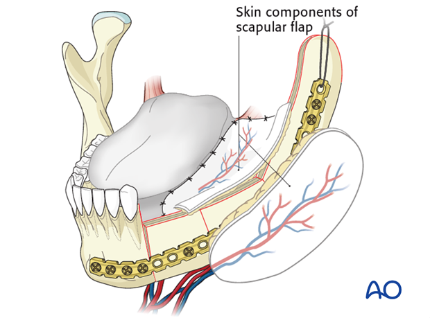 lateral mandible condyle mucosa and skin