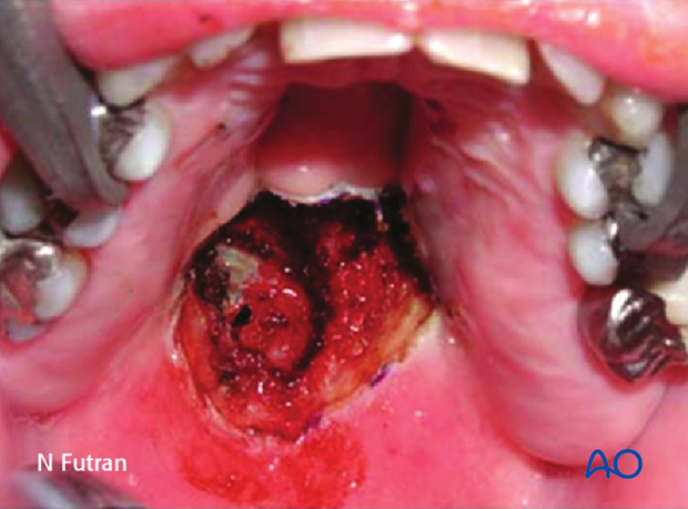 Reconstruction of midface Brown I defect - Palate: Radial forearm free flap