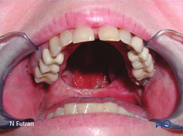 Reconstruction of midface Brown I defect - Palate: Obturator