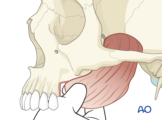 Reconstruction of midface Brown I defect - Alveolus: Temporalis muscle flap