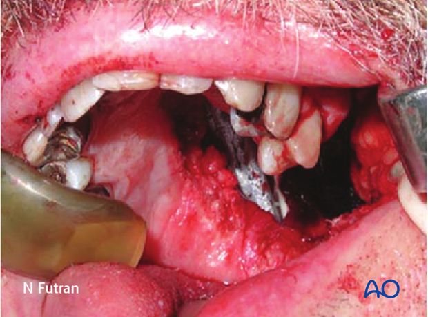 Reconstruction of midface Brown I defect - Alveolus: Obturator