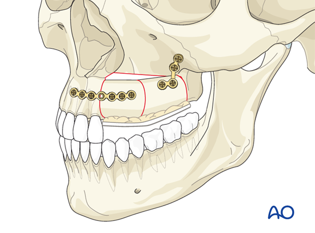 Reconstruction of midface Brown II defect: Radial forearm osteocutaneous flap