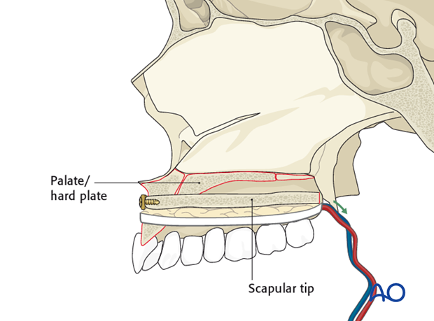 Reconstruction of midface Brown II defect: Scapula osteocutaneous flap