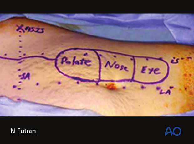 Reconstruction of midface Brown IV defect: Rectus abdominis free flap