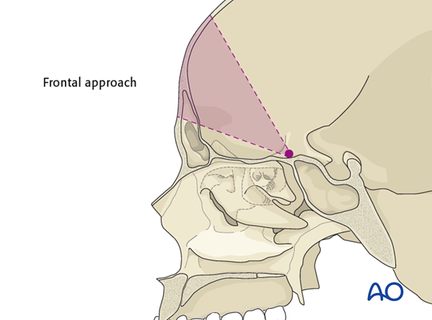 access osteotomy   frontal craniotomy