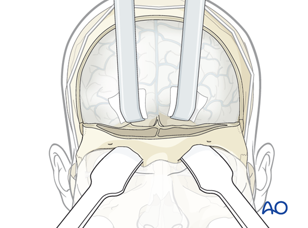 Reconstruction of skull base defect with orbital involvement: Temporal and pericranial flap