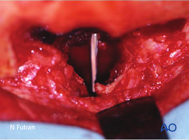 Reconstruction of skull base defect without orbital involvement: Radial forearm free flap