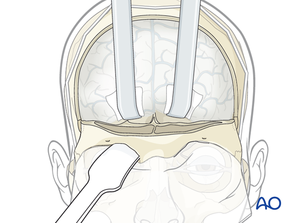 Reconstruction of skull base defect with orbital involvement