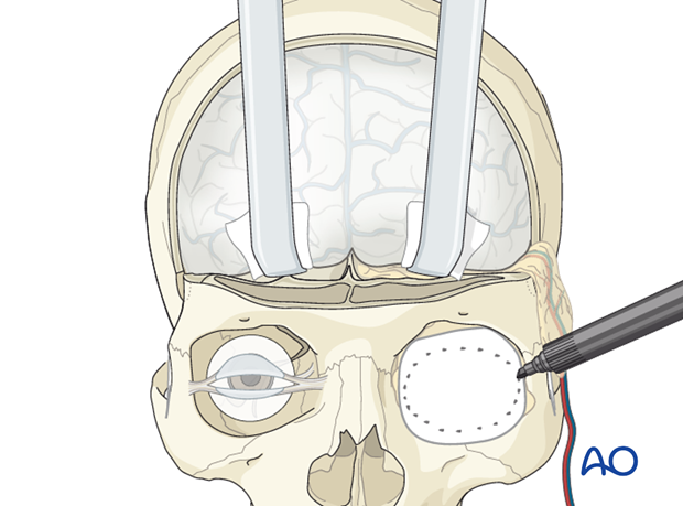 Reconstruction of skull base defect with orbital involvement: Radial forearm free flap