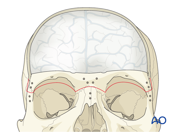 access osteotomy   extended frontal craniotomy