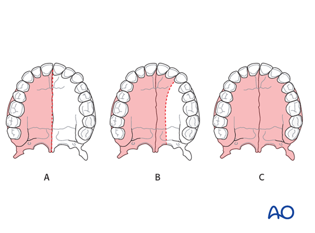 introduction to and classification of midface resections
