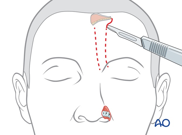 two stage forehead flap ala reconstruction