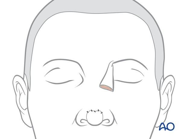 Nose Reconstruction by Dr. Frederick J Menick