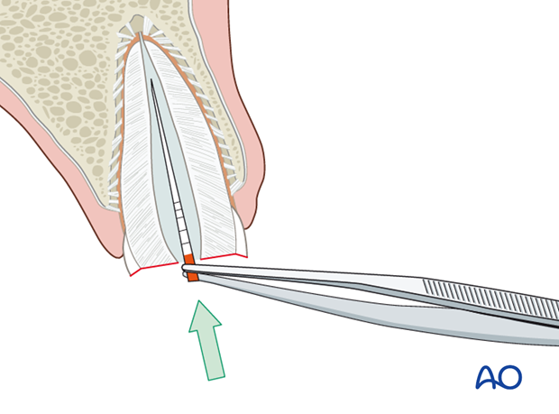 Placement of desinfectant and sealing of root canal
