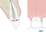 tooth fracture pulp exposure