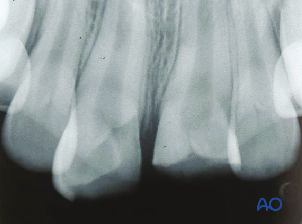 Complicated crown fractures of maxillary central incisors