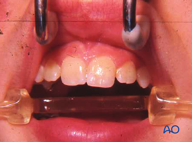 Lateral incisors have not yet reached their final position