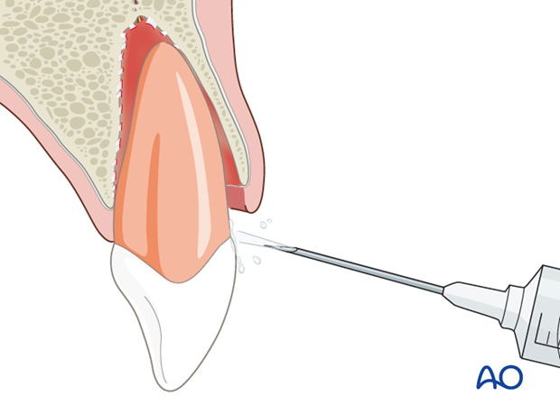 Tooth cleaning with saline solution