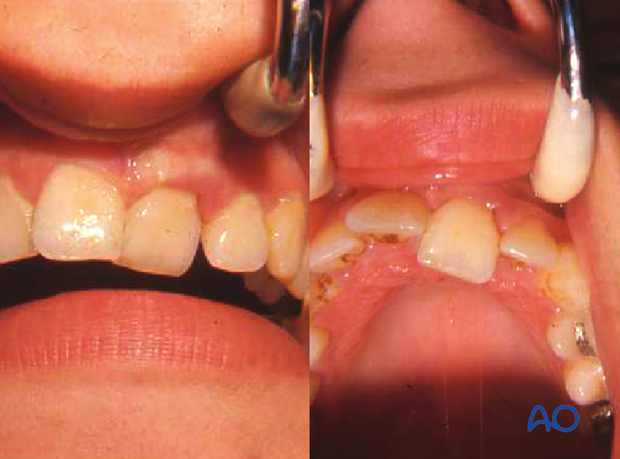 Left central maxillary incisor with lateral luxation