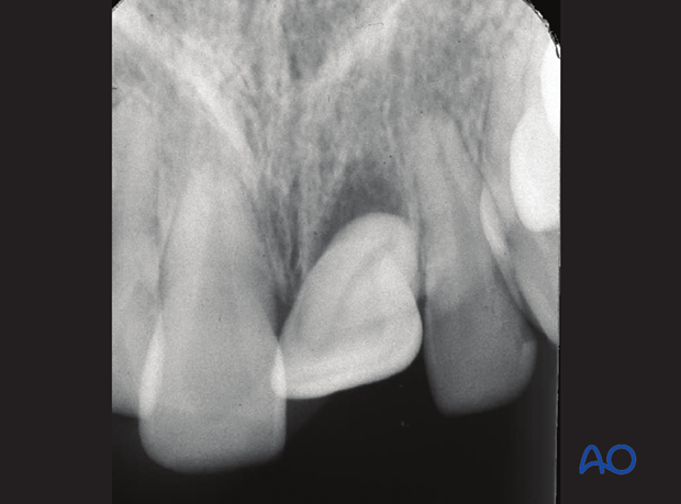 Axially dislocated tooth out of its socket with partial loss of bony attachment