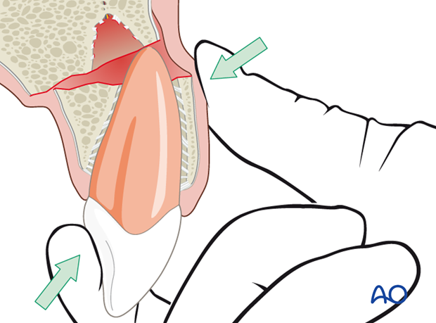 Repositioning of the tooth-bearing alveolus