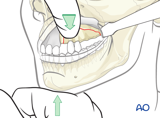 Repositioning of the fractured segment