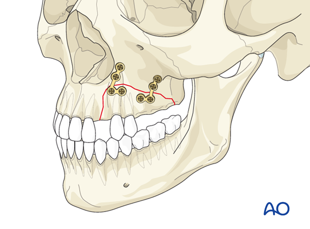 Stabilized fracture with appropriate plates and screws