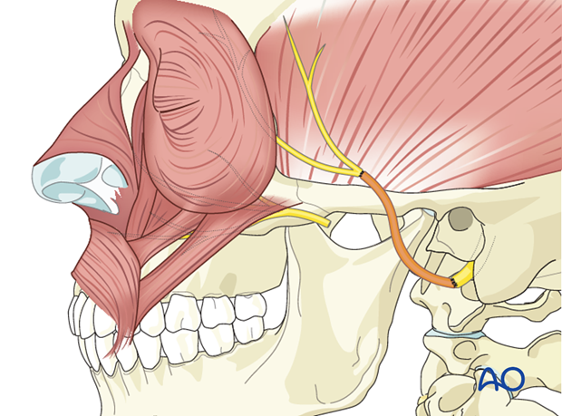 selective reinnervation with proximal facial nerve and masseteric nerve