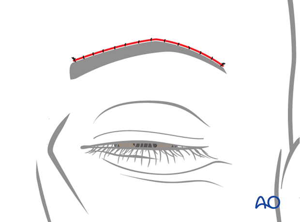 direct brow lift