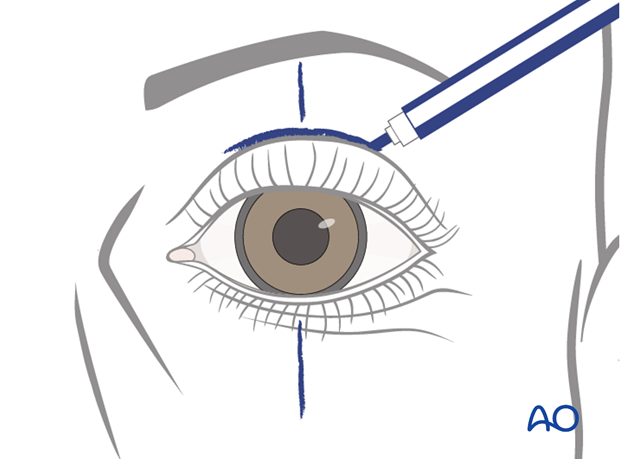 upper eyelid weight