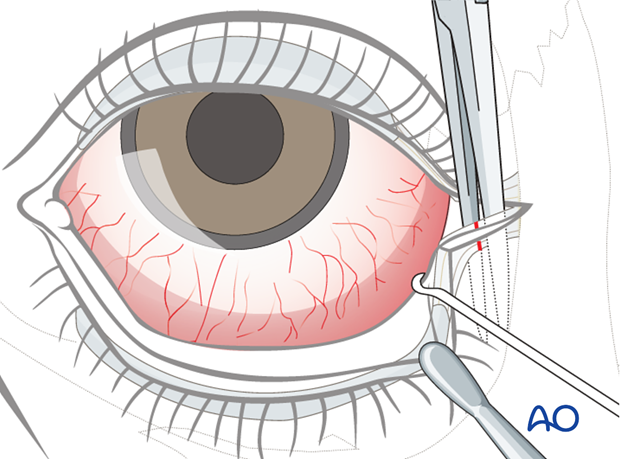 lower eyelid lateral strip canthopexy