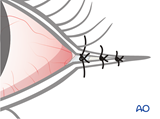 irreversible paralysis eye complex