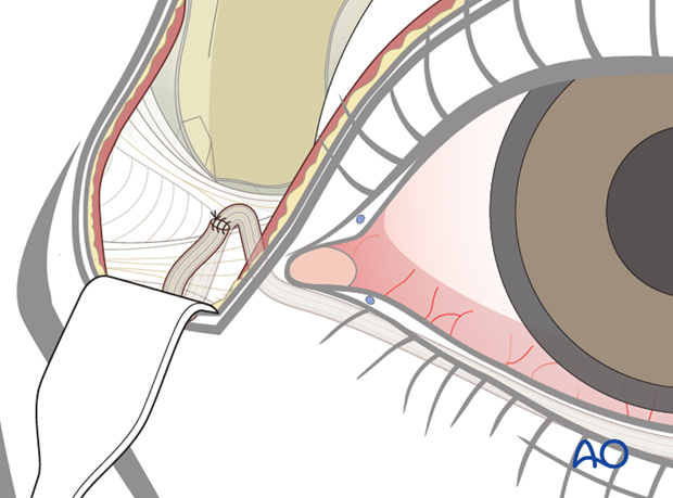 lower eyelid tendon sling