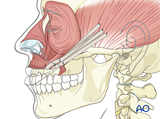 irreversible paralysis midface and mouth