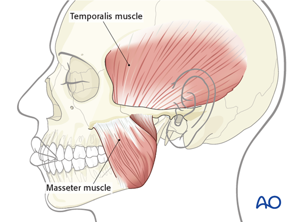 temporalis muscle antidromic mini sling