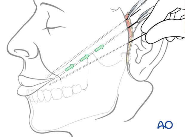 masseter muscle transposition