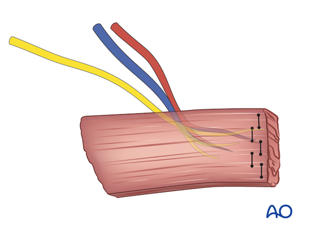 innervated free muscle transfer gracilis
