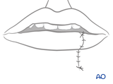irreversible paralysis mouth lower lip