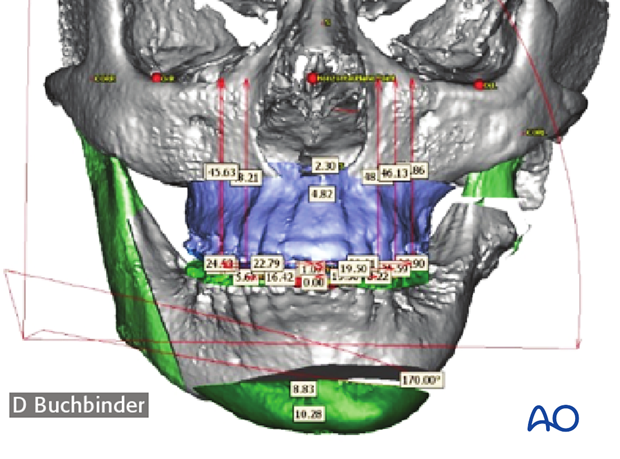 cas asymmetry correction bimaxillary correction