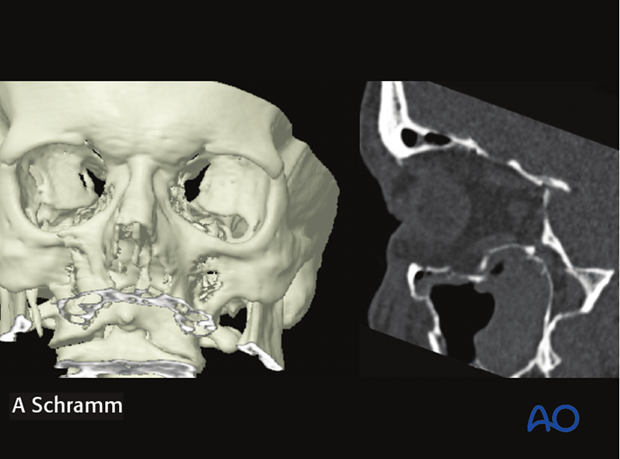 cas virtual planning and intraoperative imaging orif without orbital reconstruction