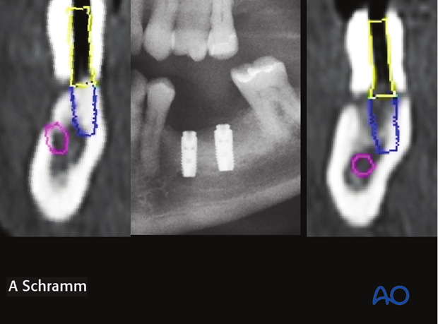 computer assisted dental implant surgery