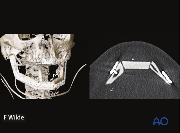 computer assisted surgery mandibular reconstruction