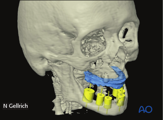 cas prostodontic driven mandibular reconstruction