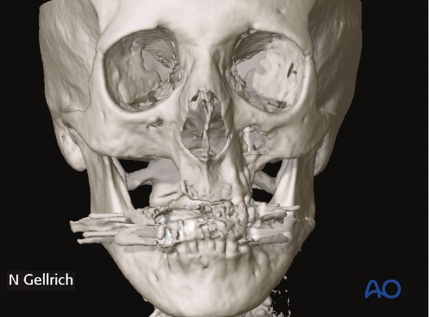 cas prostodontic driven maxillary reconstruction
